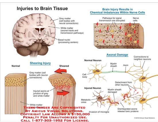 amicus,injury,brain,tissue,shearing,grey,matter,white,basal,nuclei,chemical,imbalance,nerve,cell,pathway,transmission,axonal,damage,axon,mylen,sheath,cell,body,detachment,injured,metabolic,disintefrated,toxic,protien,microglia,invasion