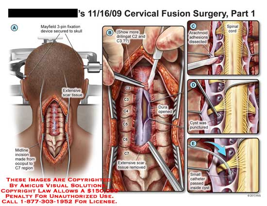 amicus,surgery,cervical,fusion,mayfield,3-pin,skull,scar,tissue,C7,dura,C2,C3,C4,C5,C6,spinal,cord,arachnoid,adhesion,cyst,punctured,catheter