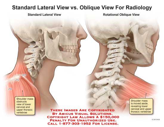 amicus,anatomy,spine,vertabrae,shoulder,cervical,C1,C2,C3,C4,C5,C6,C7,T1,radiology,arm,oblique