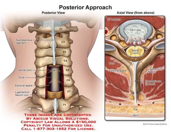 amicus,injury,C1,C2,C3,C4,C5,C6,C7,T1,T2,supraspinous,ligament,spinal,cord,dura,epidural,space,ligamenium,lavum,vertebra,herniation,