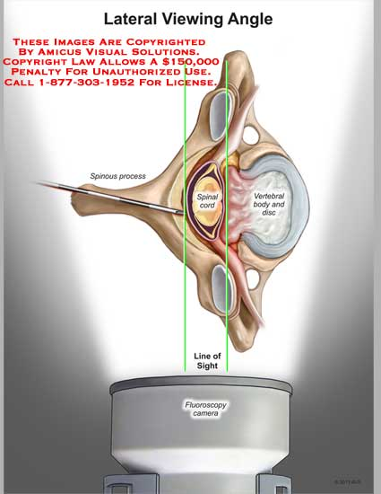 amicus,anatomy,lateral,viewing,angle,spinous,process,spinal,cord,vertebral,body,disc,line,sight,fluroscopy,camera