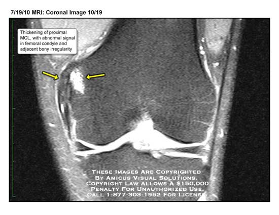 amicus,radiology,MRI,coronal,thickening,proximal,MCL,femoral,condyle