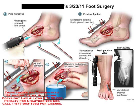amicus,surgery,foot,fixating,pin,monolateral,debrided,silvadene,adaptic,external,fixator