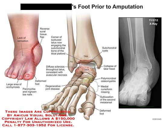 amicus,injury,foot,amputation,prior,reverse,sural,tissue,flap,subluxed,talus,subchonodral,tibial,plafond,diffuse,sclerosis,avascular,necrosis,joint,disease,degenerative,tibia,fibula,talus,cysts,talar,head,polumicrobial,osteomyelitis,subluxation,metatarsal