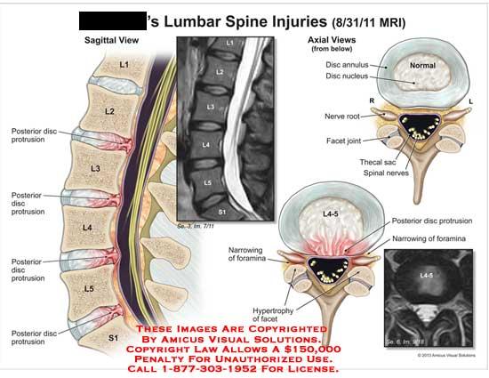 amicus,injury,lumbar,spine,MRI,disc,protrusion,L4-5,nerve,root,facet,joint,nucleus,annulus,foramina,hypertrophy,L1,L2,L3,L4,L5,S1