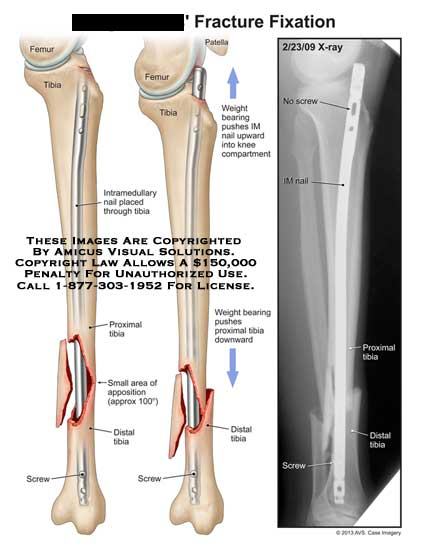 amicus,surgery,fracture,fixation,femur,tibia,patella,intramedullary,nail,proximal,distal,screw,apposition,IM,nail,x-ray