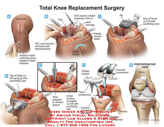 amicus,surgery,total,knee,replacement,PCL,drill,femur,patella,flexed,ACL,menisci,electrocautery,jig,saw,oscillating,spacer,femoral,compomemt,plastic,cement,femur