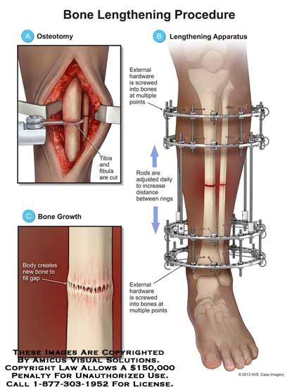 amicus,surgery,bone,lengthening,procedure,osteotomy,tibia,fibula,hardware,screwed,rods,growth,gap