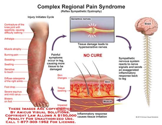 amicus,anatomy,complex,regional,pain,syndrom,CRPS,tissue,damage,hypersensitive,nerves,sympathetic,nervous,system,inflammatory,response,irritation,swelling,impaired,muscle,function,temperature,color,sweating,atrophy,impaired,movement,rigid,nails