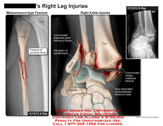 amicus,injuries,leg,fracture,maisonneuve,type,proximal,fibula,tibia,calcaneus,talus,x-ray,communicated,displaced,syndesmosisdisplaced,comminuted,medial,malleous