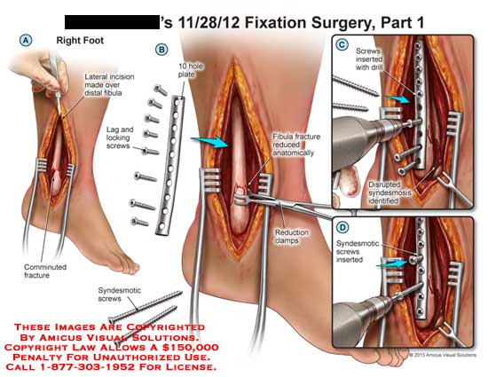 AMICUS Illustration of amicus,surgery,fixation,surgery,leg,incision ...