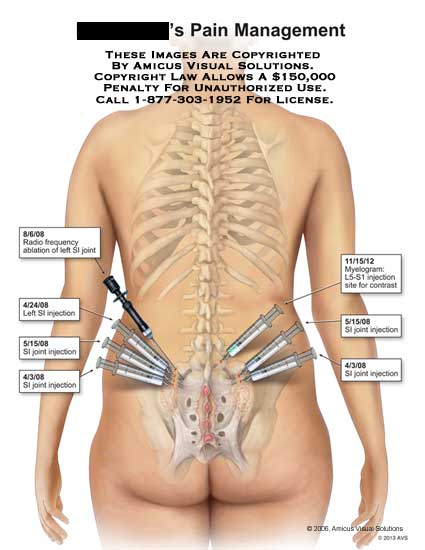 amicus,injection,SI,joint,radio,frequency,ablation,spine,myelogram,L-5-S1,contrast