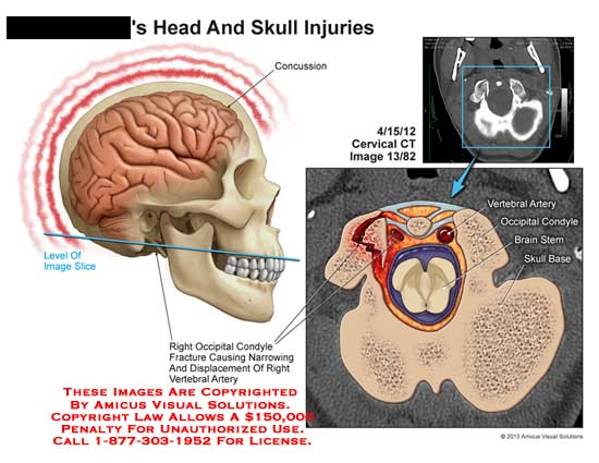 amicus,injury,head,skull,concussion,occipital,condyle,fracture,displacement,vertebral,artery,CT,brain,stem