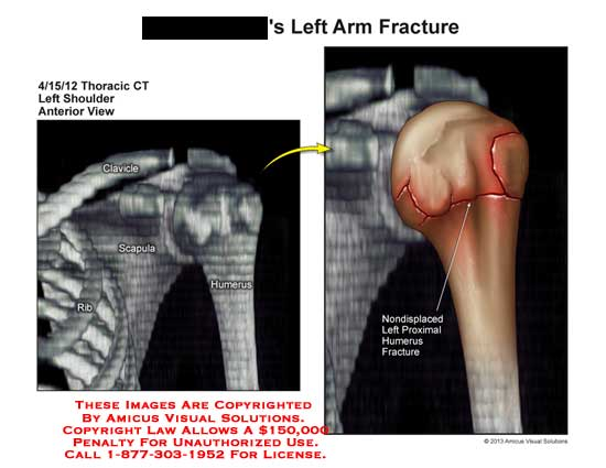 amicus,injury,arm,fracture,clavicle,scapula,humerus,rib,nondisplaced,proximal