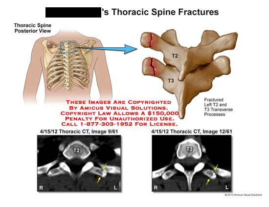 amicus,injury,fracture,spine,T2,T3,CT,transverse,processes,spinal,cord