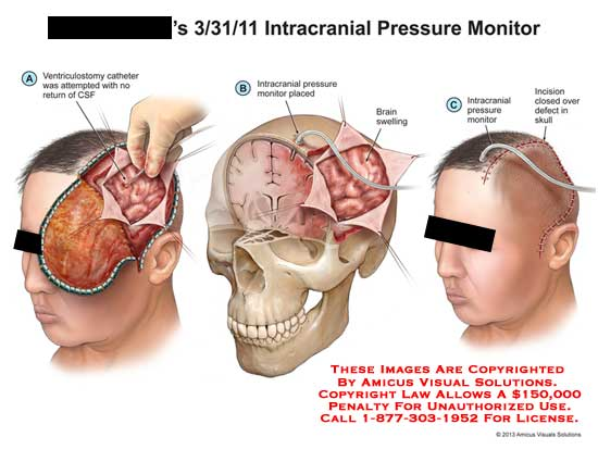 amicus,surgery,intercranial,pressure,CSF,ventriculostomy,catheter,CSF,monitor,brain,swelling,incision
