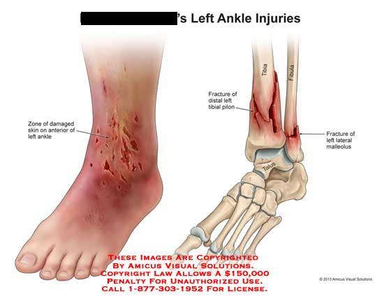amicus,injury,ankle,damaged,skin,tibia,fibula,fracture,pilon,talus,malleolus