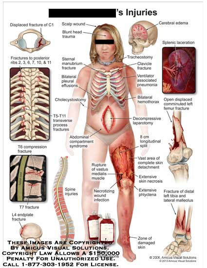 amicus,injury,displaced,fracture,C1,scalp,wound,blunt,head,trauma,rib,sternal,manubrium,cholecystostomy,T5-T11,transverse,process,compression,endplate,L4,spine,compartment,syndrome,rupture,vastus,medialis,muscle,blood,transfusion,damaged,skin,tibia,lateral,malleolus,phlycenta,necrosis,skin,detachment,laparotomy,splenic,laceration,edemal,cerebral,tracheostomy,clavicle,ventilator,pneumonia,hemothorax