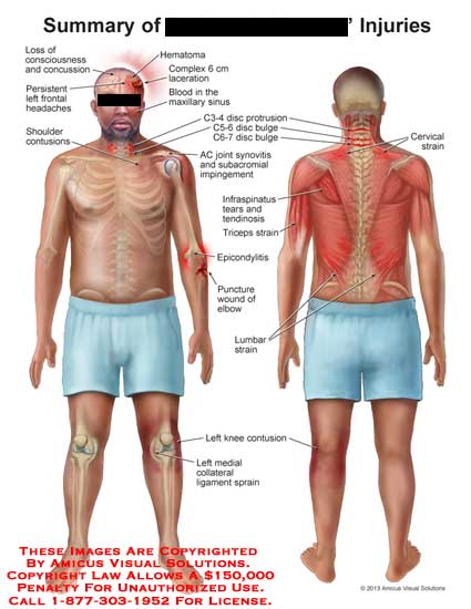 amicus,injury,loss,consciousness,concussion,hematoma,lacteration,complex,headache,contusion,blood,maxillar,sinus,protusion,C3-4,C5-6,C6-7,disc,AC,joimt,synovitis,subacromial,impingement,intraspinatus,tears,tendinosis,puncture,wound,elbow,lumbar,strain,knee,collateral,ligament