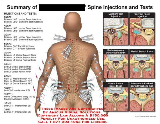 amicus,injection,test,lumbar,facet,L4/5,L5/S1,C6-7,C7-T-1,L3,L4,L5,medial,branch,block,dorsal,RFD,ESI,interlaminar,nerve,conduciton,study,NCS,EMG,electromyelogram,interlaminar,C7-T1,radiofrequency,denervation,dorsal