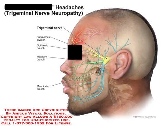 amicus,injury,headache,trigeminal,nerve,neuropathy,supraorbital,division,opthalmic,branch,maxillary,mandibular,head,face