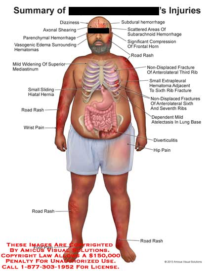 amicus,injuries,hemorrhage,subdural,subarachnoid,hemorrhage,compression,horn,road,rash,non-displaced,gracture,third,rib,anterolateral,extrapleural,sixth,seventh,dependent,mild,atelctasis,lung,diverticulitis,hip,foot,wrist,pain,hiatal,hernia,superior,mediastinum,vasogenic,edema,hematomas,dizziness,axonal,shearing,parenchymal