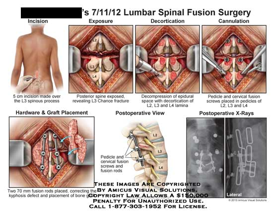 AMICUS Illustration of amicus,surgery,lumbar,spine,fusion,L3