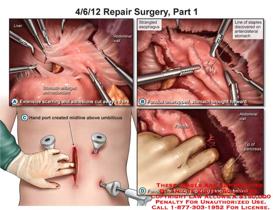 amicus,surgery,repair,stomach,enlarged,handport,umilicus,fundus,pancreas,abdominal,staples,esophagus