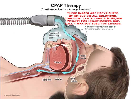 amicus,anatomy,CPAP,therapy,continuous,positive,airway,pressure,face,mask,mouth,tongue,epiglottis,soft,palate,trachea,nasal,nose,compressed