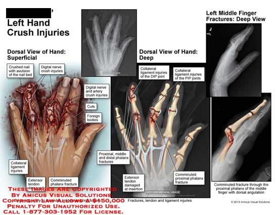 amicus,injuries,hand,finger,crushed,nail,avulsion,bed,digital,nerve,cut,foreign,body,extensor,tendon,damaged,monninuted,proximal,phalanx,DIP,joint,collateral,PIP,dorsal,angulation