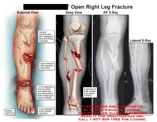 amicus,injuries,leg,fracture,comminuted,displaced,tibia,fibula,exposed,open,laceration,medial,lateral,malleoli,x-ray