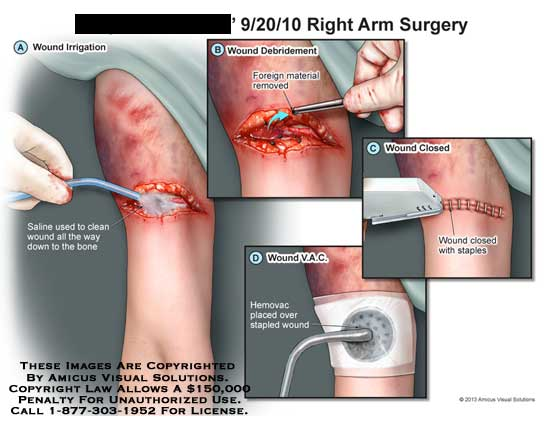 amicus,surgery,arm,saline,bone,foreign,removed,material,staples,V.A.C,VAC,hemovac,wound