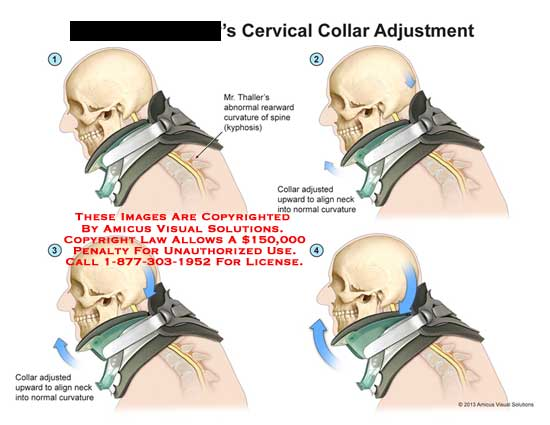 amicus,anatomy,cervical,collar,adjustment,abnormal,rearward,curvature,spine,adjusted,upward,align,normal,curvature