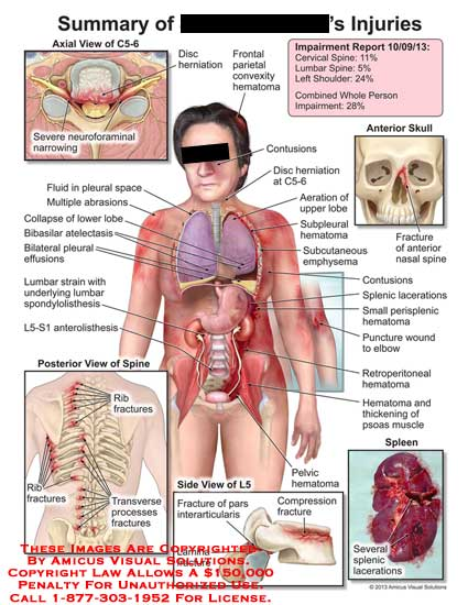 amicus,injuries,C5-6,severe,neruoforaminal,narrowing,disc,herniation,frontal,parietal,convexity,hematoma,fluid,plerual,space,abrasion,lobe,collapse,bibasilar,atelectasis,effusions,lumbar,strain,spondylolisthesis,anterolisthesis,L5-S1,rib,fracture,transverse,processes,compression,interarticularis,lamina,splenic,pelvic,hematoma,psoas,retroperitoneal,puncture,elbow,perisplenic,hematoma,contusions,nasal,spine,emphysema,subpleural,aeration,lobe