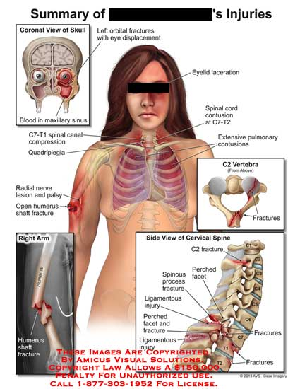 amicus,injury,summary,orbital,fracture,eye,displacement,blood,sinus,C7-T1,compression,quadriplegia,radial,nerve,lesion,palsy,humerus,shaft,laceration,eyelid,spinal,cord,contusion,pulmonary,vertebra,C2,perched,facet,spinous,process,ligamentous