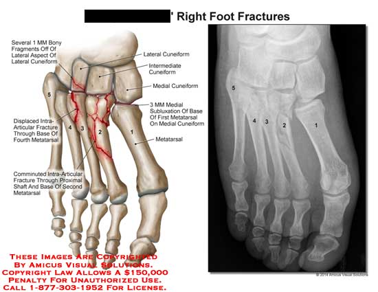 amicus,injury,fracture,fragment,lateral,aspect,cuneiform,intermediate,medial,subluxation,metatarsal,intra-articular,fracture,comminuted,x-ray