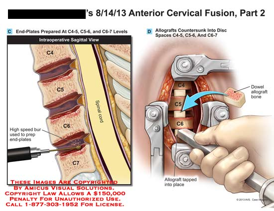 amicus,surgery,anterior,cervical,fusion,C5,C6,C7,bur,end-plate,spinal,cord,allograft,bone,graft,tapped