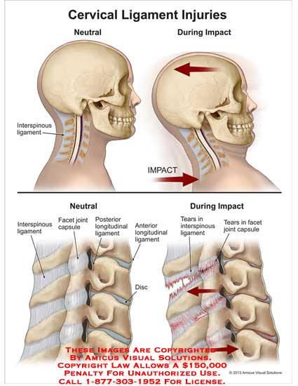 amicus,injury,cervical,ligament,neutral,impact,interspinous,facet,joint,capsule,longitudinal,tears,capsule,spinal,cord