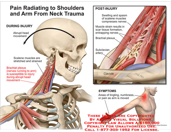 amicus,injury,pain,radiating,shoulder,arm,neck,trauma,scalene,muscle,stretched,strained,brachial,plexus,clavicle,tingling,numbness,rib,subclavian,artery,spasm,swelling