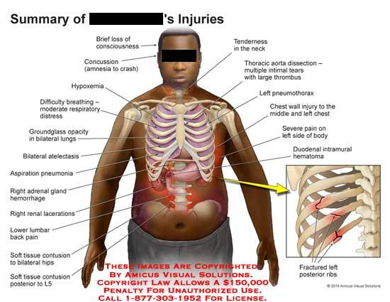 amicus,injury,summary,consciousness,concussion,amnesia,hypoxemia,repiratory,distress,groundglass,opacity,bilateral,atelectasis,aspiration,pneumonia,adrenal,gland,hemorrhage,renal,laceration,lumbar,pain,contusion,hip,L5,tenderness,neck,thoracic,aorta,dissection,thrombus,pneumothorax,duodenal,intramural,hematoma,fractured,rib