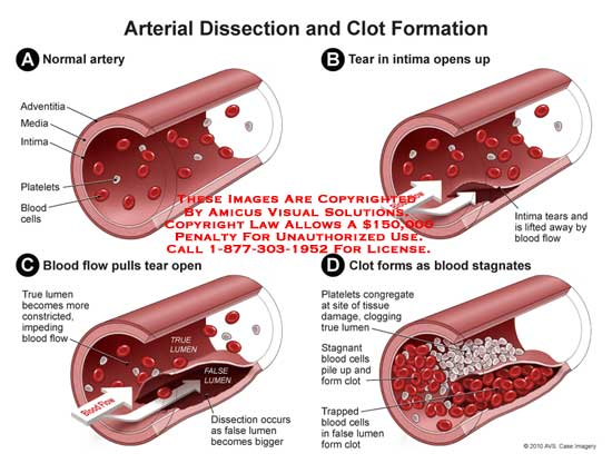 amicus,surgery,dissection,clot,formation,artery,media,adventitia,intima,platelets,blood,cell,true,lumen,constricted,impending,flow,false,clogging,clot
