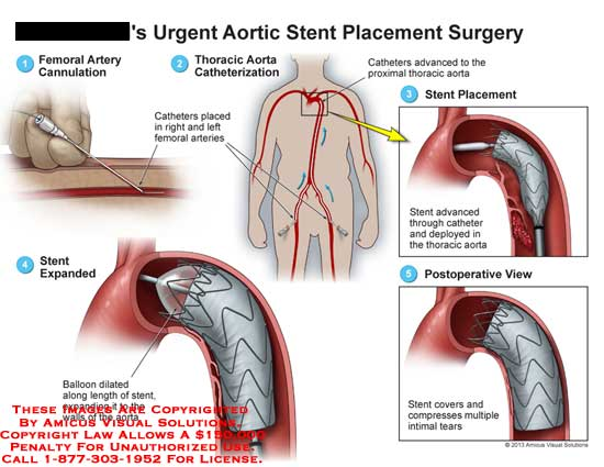 amicus,surgery,aortic,stent,placement,artery,cannulation,catheter,femoral,arteries,thoracic,aorta,expanded,balloon
