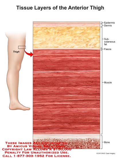 amicus,anatomy,tissue,thigh,anterior,epidermis,dermis,subcutaneous,fat,muscle,bone