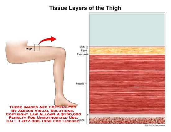 amicus,anatomy,tissue,thigh,leg,muscle,skin,fat,fascia,bone