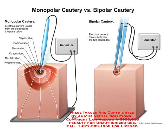 What is bipolar cautery?