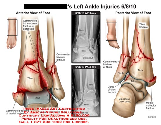 amicus,injury,fracture,ankle,bone,tibia,fibula,comminuted,intra-articular,distal,talus,medial,malleolus,calcaneus,dome