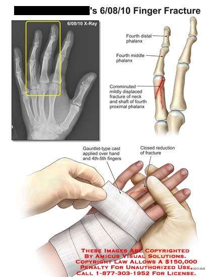 amicus,injury,finger,fracture,distal,phalanx,comminuted,displaced,neck,shaft,proximal,Gauntlet-type,cast,closed,reduction