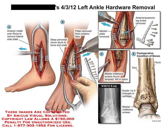 amicus,surgery,ankle,hardware,removal,fibula,plate,peroneal,nerve,bone,tibia,lag,screw,medial,fibula,malleolus,talus,grade,I,II,cartilage