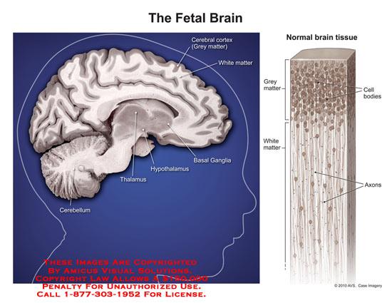 amicus,anatomy,fetal,brain,grey,matter,white,cell,bodies,basal,ganglia,hypothalamus,thalamus,axon