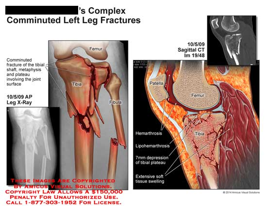 amicus,injury,fracture,femur,tibia,fibula,comminuted,fracture,shaft,metaphysis,plateau,patella,CT,bone,hemarthrosis,lipohemarthrosis,depression,tibial,plateau,soft,tissue,swelling